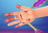 لعبة عملية جراحية في اليد 2021