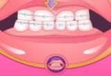 العاب تركيب تقويم اسنان